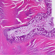 Soluciones a problemas digestivos - Herbolario Larrea